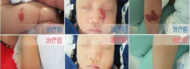 武汉海绵状血管瘤治疗医院排名