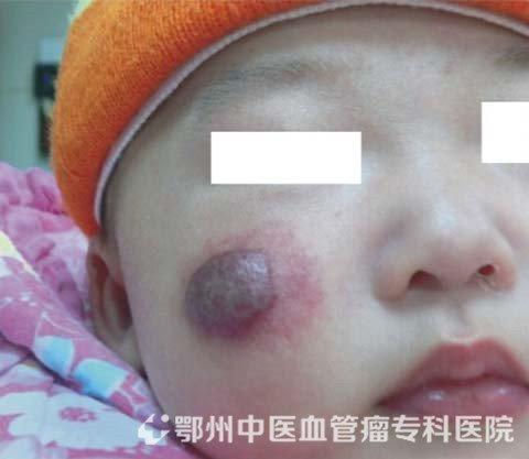 寶寶燒傷會不會留疤痕嗎